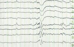 Elektro-encephalogramme-electro Royalty-vrije Stock Afbeelding