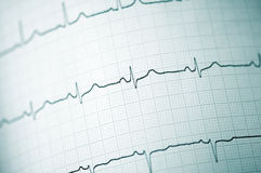 Elektrocardiogram Royalty-vrije Stock Afbeeldingen