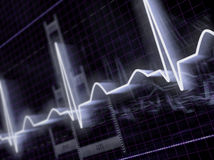Elektrocardiogram Royalty-vrije Stock Fotografie