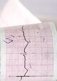 Elektrocardiogram CTG Stock Afbeeldingen