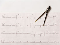 Elektrocardiogram, of electrocardiogram, met Beugels Stock Foto's