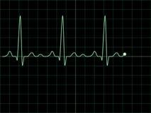 Elektrocardiogram op een oscilloscoop Stock Illustratie