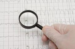 Elektrocardiogram op papier Dien medische handschoen in houdend een magn royalty-vrije stock foto's