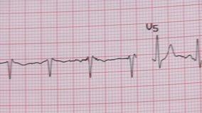 Elektrocardiogramexamen stock video