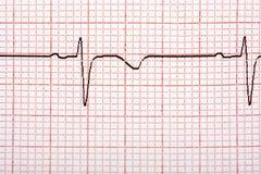 Elektrocardiogramprintout Royalty-vrije Stock Fotografie