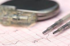 Elektrokardiograf med pacemaker royaltyfria foton
