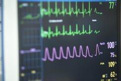 Elektrokardiograf w szpitalnej operaci Zdjęcie Stock