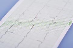Elektrokardiogram Obraz Stock