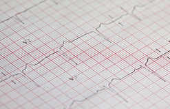 elektrokardiogram Zdjęcia Stock