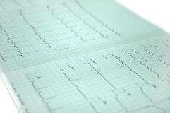 Elektrokardiogram obrazy royalty free