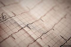 elektrokardiogram Zdjęcie Royalty Free