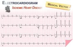 Elektrokardiogram (ECG, EKG) av den Ischemic hjärtsjukdomen (Myocardial infarkt) och anatomi av hjärtasymbolen Arkivbild