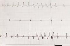 Elektrokardiogram ECG/EKG med hjärt- arrhythmia royaltyfri bild