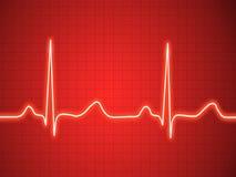 Elektrokardiogram ecg, graf, pulsspåring Arkivfoto