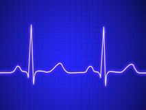 Elektrokardiogram, ecg, wykres, pulsu kalkowanie Obraz Stock