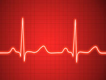 Elektrokardiogram, ecg, wykres, pulsu kalkowanie Zdjęcie Stock
