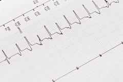 Elektrokardiogram hjärt- Arrhythmia royaltyfria bilder