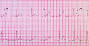 Elektrokardiogram i rosa raster Royaltyfria Foton