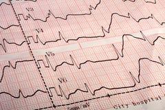 Elektrokardiograma ECG wydruk zdjęcia royalty free