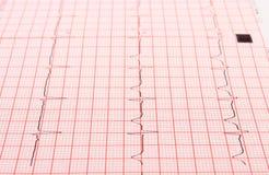 Elektrokardiogramgrafrapport Royaltyfria Foton
