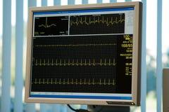 Elektrokardiogrammüberwachungsgerät Stockbild