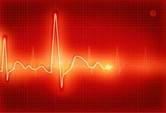 Elektrokardiogramm Stockbild