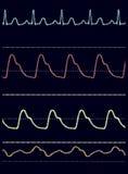 elektrokardiogramm Lizenzfreie Stockbilder