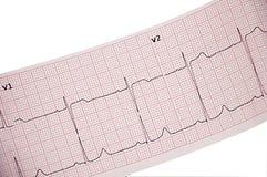 elektrokardiogramm Lizenzfreies Stockfoto
