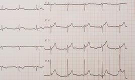 Elektrokardiogramm fotos de archivo libres de regalías