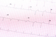 elektrokardiogramm Lizenzfreie Stockfotografie