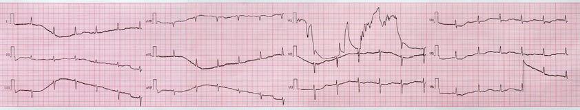 elektrokardiogramm Stockfotografie