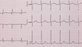 Elektrokardiogramm des Patienten lizenzfreie stockfotos