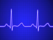 Elektrokardiogramm, ecg, Diagramm, Impulsverfolgung Stockbild