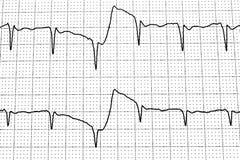 Elektrokardiogramprov som visar elektrisk aktivitet av hjärtan Arkivbild