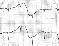 Elektrokardiogramprov som visar elektrisk aktivitet av hjärtan Arkivbilder