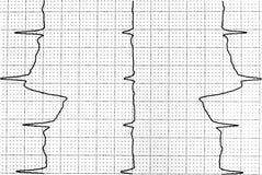 Elektrokardiogramprov som visar elektrisk aktivitet av hjärtan Royaltyfria Bilder
