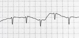 Elektrokardiogramprov som visar elektrisk aktivitet av hjärtan Royaltyfri Bild