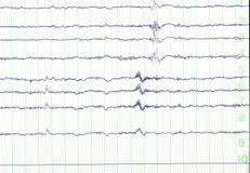 Eletro-encephalogramme fotos de stock