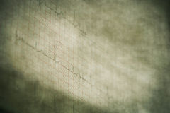 Eletrocardiograma fotografia de stock