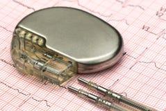 Elettrocardiografo con lo stimolatore cardiaco fotografie stock libere da diritti