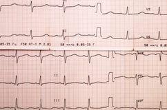 Elettrocardiogramma Immagini Stock