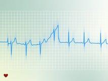 Elettrocardiogramma Fotografia Stock Libera da Diritti
