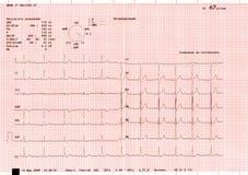 Elettrocardiogramma Immagine Stock Libera da Diritti