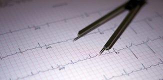 elettrocardiogramma con i calibri Fotografie Stock