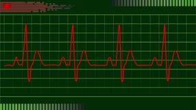 ELETTROCARDIOGRAMMA DI ECG Fotografia Stock Libera da Diritti