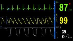 elettrocardiogramma, ECG, monitor di cuore stock footage