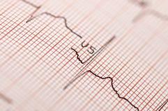 Elettrocardiogramma nella fine in su Immagini Stock