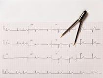 Elettrocardiogramma, o EKG, con i compassi Fotografie Stock