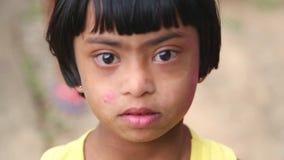 ELLA, SRI LANKA - MÄRZ 2014: Porträt jungen Mädchens Sri Lankan mit Down-Syndrom in Ella Ella ist eine schöne kleine schläfrige S stock video