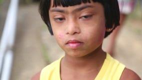 ELLA, SRI LANKA - MÄRZ 2014: Porträt jungen Mädchens Sri Lankan mit Down-Syndrom in Ella Ella ist eine schöne kleine schläfrige S stock footage